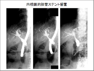内視鏡的胆管ステント留置