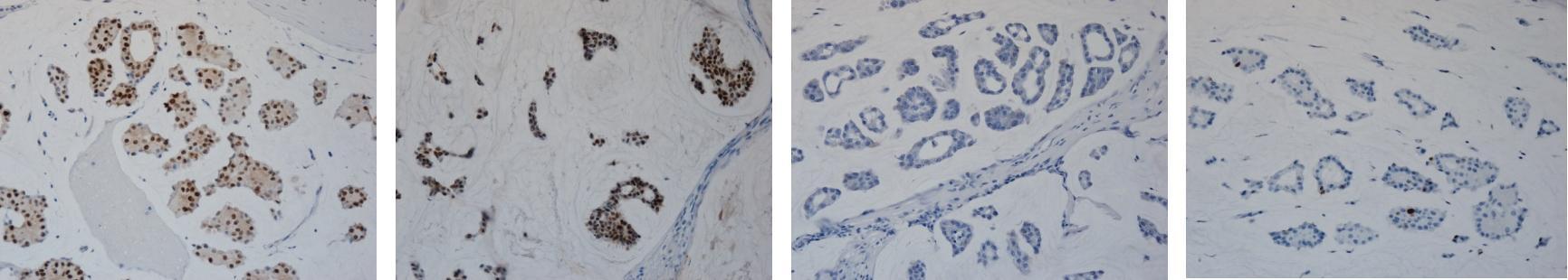 エストロゲン・レセプター、プロゲステロン・レセプター、HER2/neu、Ki-67の4種類の染色標本