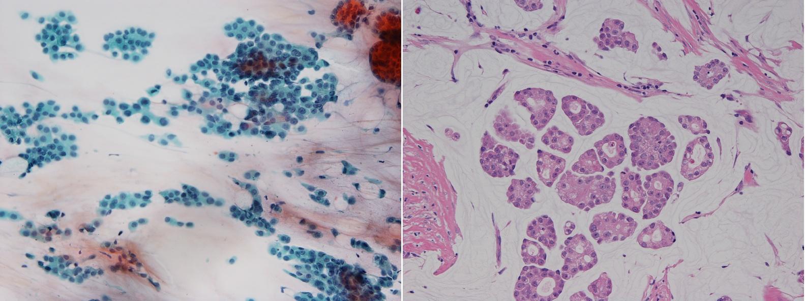 左図は細胞診標本 右図は針生検組織標本