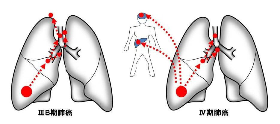 IIIA期・IV期肺がん図