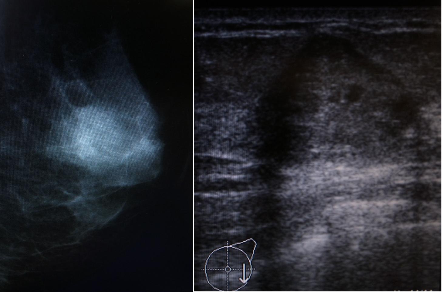 マンモグラフィー(左図)乳腺エコー(右図)