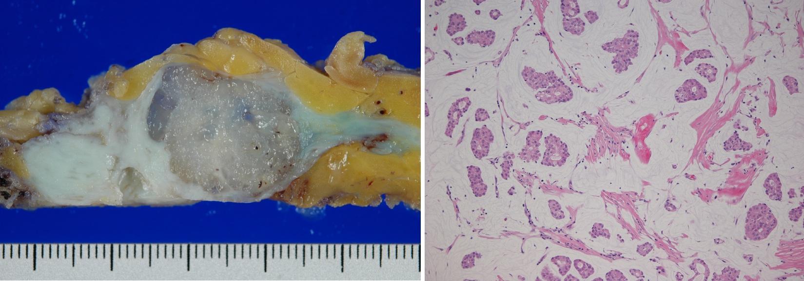 左図は摘出された乳癌の割面、右図はその顕微鏡組織像