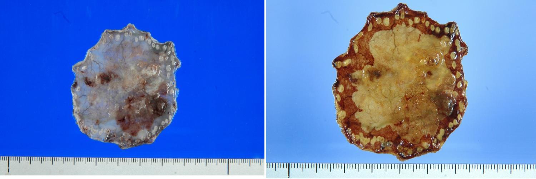摘出組織を固定(左図)そこにルゴール液をかけて癌の範囲を決めます(右図)