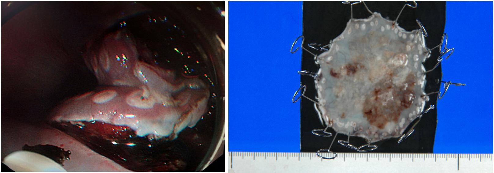 内視鏡下に癌を摘出(左図)、病理に摘出した組織を提出右図)
