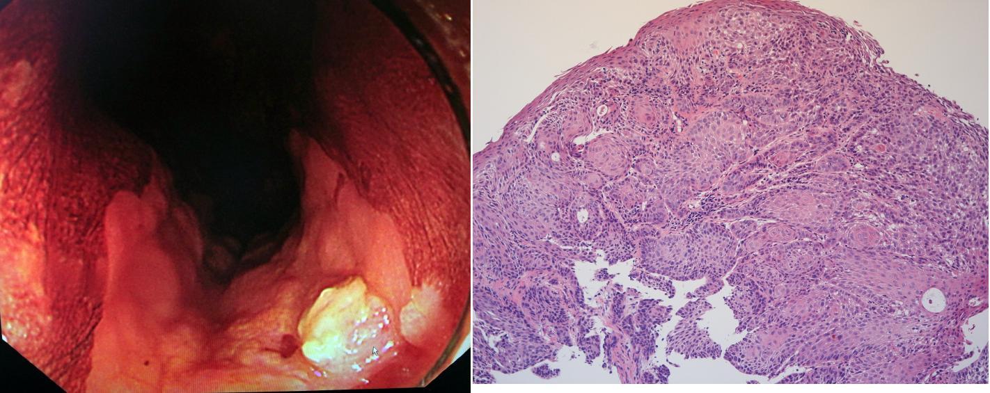 消化器内視鏡医は内視鏡で食道癌を発見(左図)、顕微鏡標本(右図)