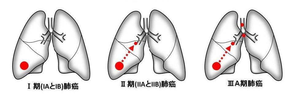 I期・II期・IIIA期肺がん図