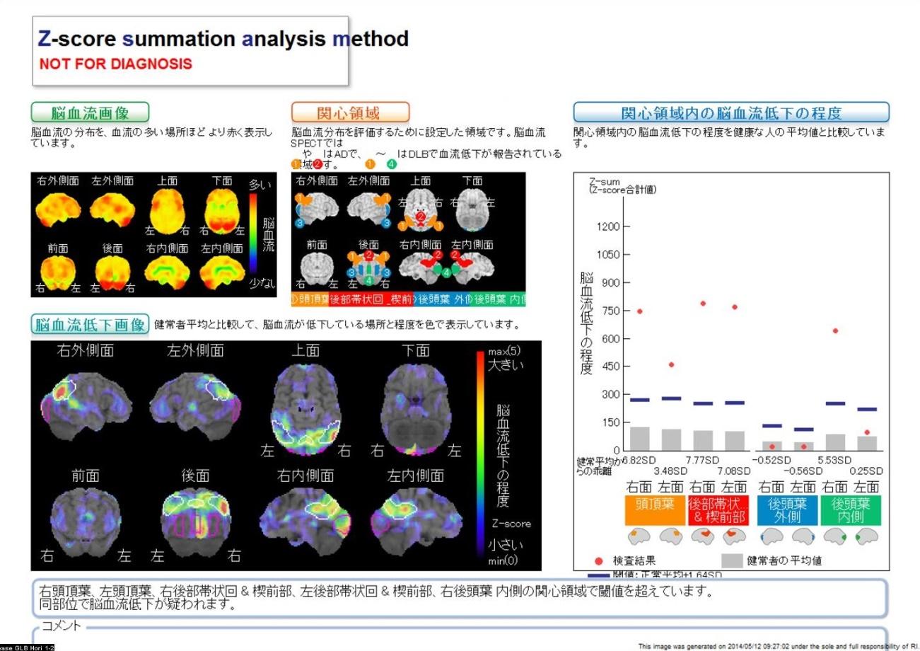 脳血流シンチグラフィのイメージ画像