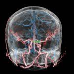 脳血管3DCT画像1