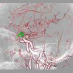 脳血管3DCT画像4