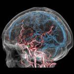 脳血管3DCT画像2