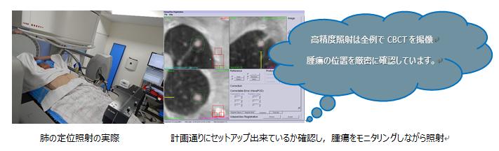 肺の定位照射の様子