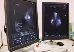 マンモグラフィーレントゲン図