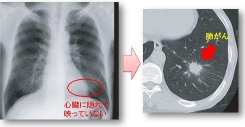 低線量胸部単純CTの画像
